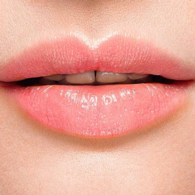 lippenvergrosserung-nachher